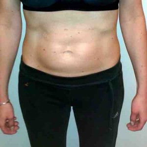 Sonja L. nach 3 Monaten HYPOXI | Sonja L. after 3 months with HYPOXI