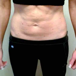 Sonja L. nach 4 Monaten HYPOXI | Sonja L. after 4 months with HYPOXI