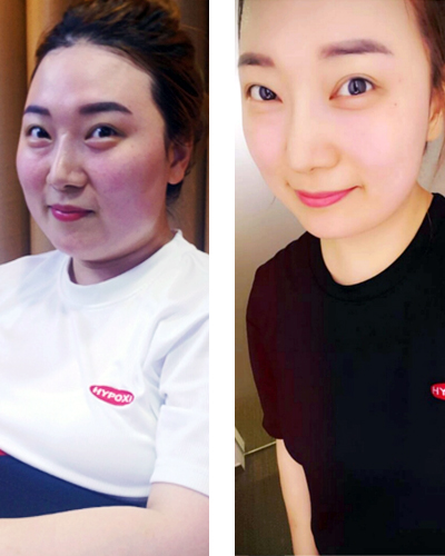 Hye Yeon - Dank der HYPOXI-Methode abgenommen | Hye Yeon – I succeed to lose weight thanks to HYPOXI